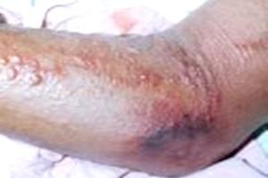 La Mauritanie rapporte un cas biologiquement confirmé de fièvre hémorragique de Crimée-Congo Médecine des voyages