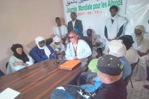 Les albinos de Mauritanie veulent se faire entendre [PhotoReportage]