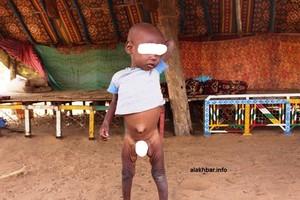 Est Mauritanie : la malnutrition frappe les enfants des Adwaba